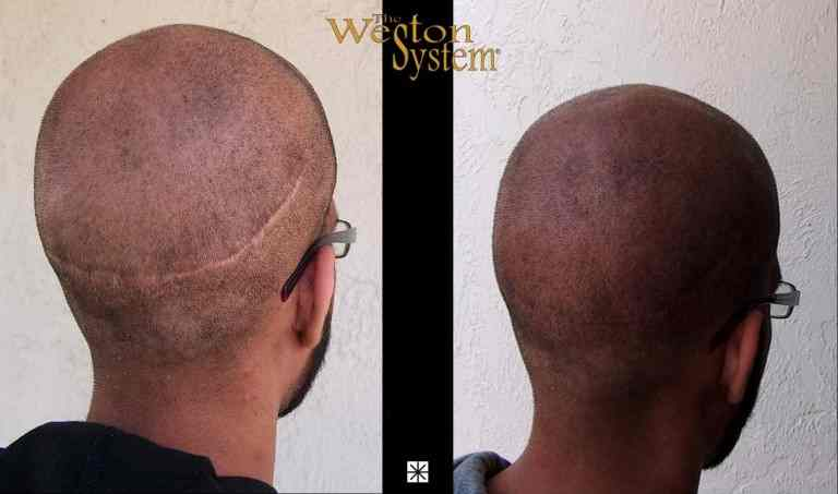 Micro Scalp Pigmentation Scar Camouflage