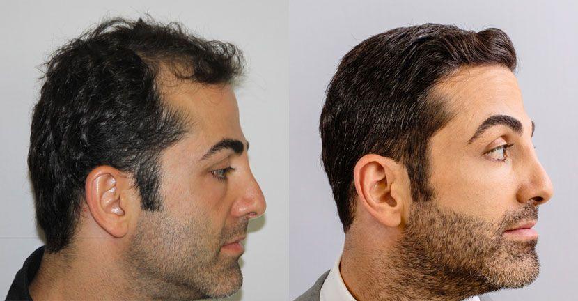 Alviarmai Hair Transplant1a