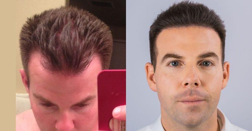 Alviarmai Hair Transplant2a