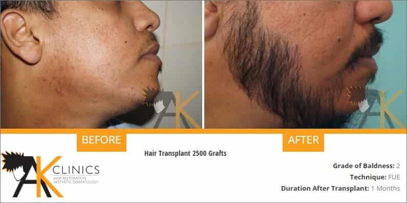 beard-transplant-result-1