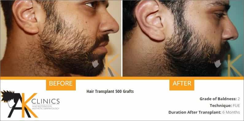 beard-transplant-result