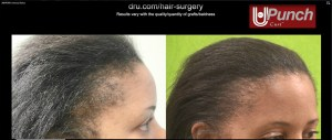 Black Women Hair Transplant