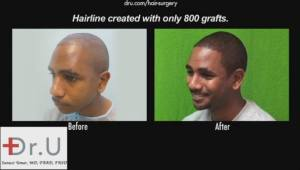 Body Hair Transplant Training