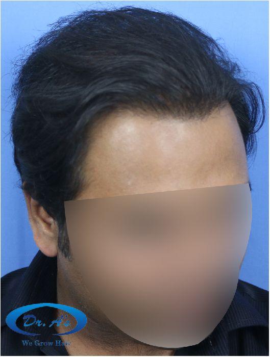 Dr Arvind Hair Transplant Result 5