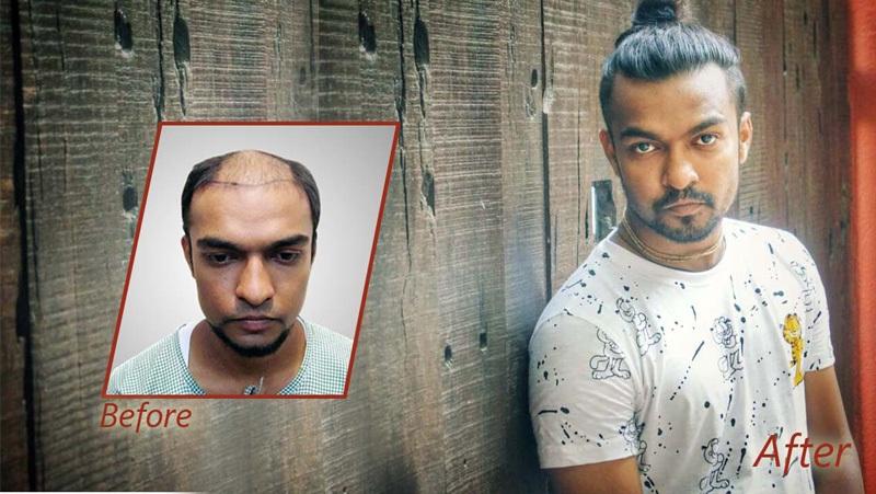 Dr Arvind Hair Transplant Result 6