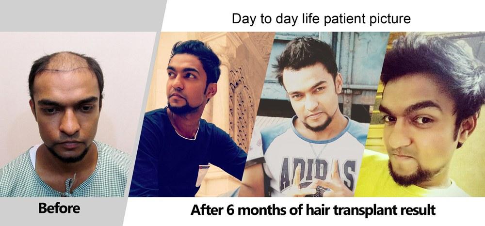 Dr Arvind Hair Transplant Result 8
