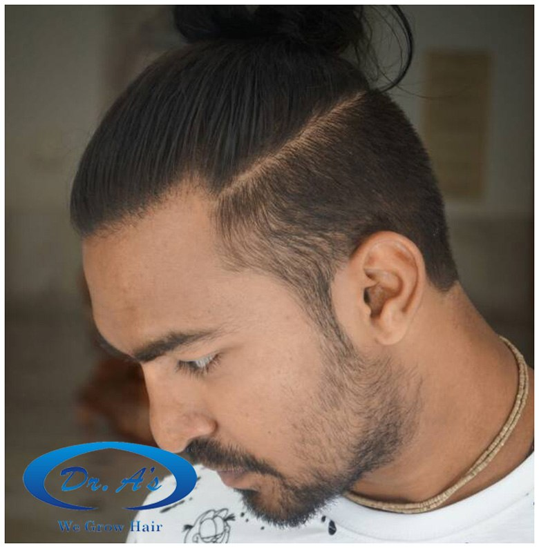 Dr Arvind Poswal Hair Transplant India 10