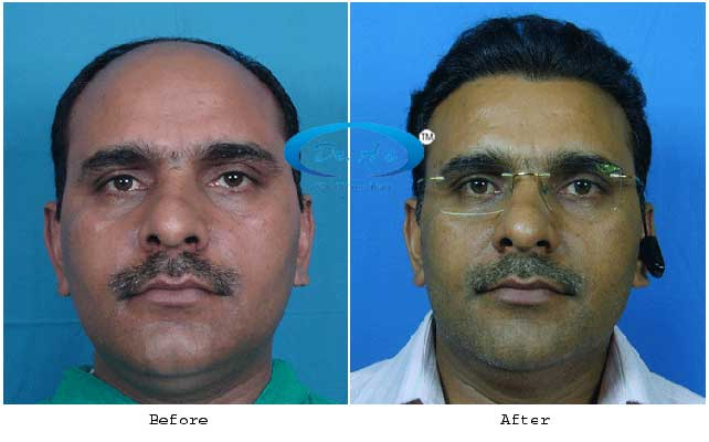 Dr Arvind Poswal Hair Transplant India 12