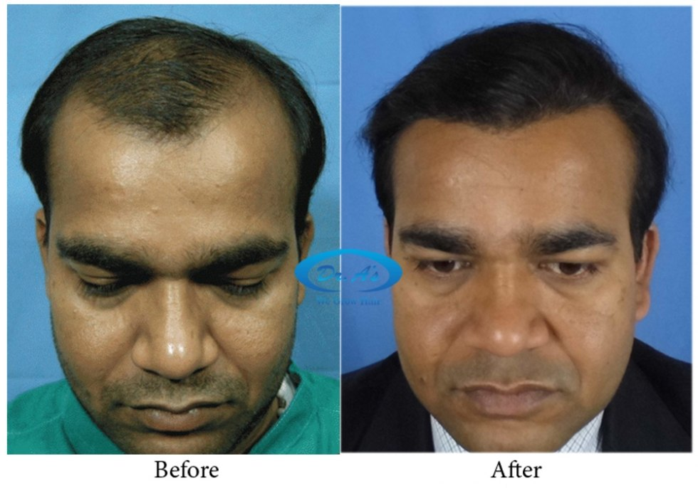 Dr Arvind Poswal Hair Transplant India 13