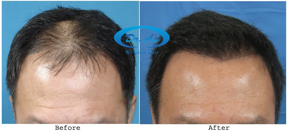 Dr Arvind Poswal Hair Transplant India 21