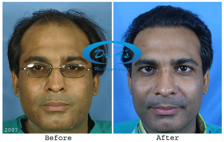 Dr Arvind Poswal Hair Transplant India 23