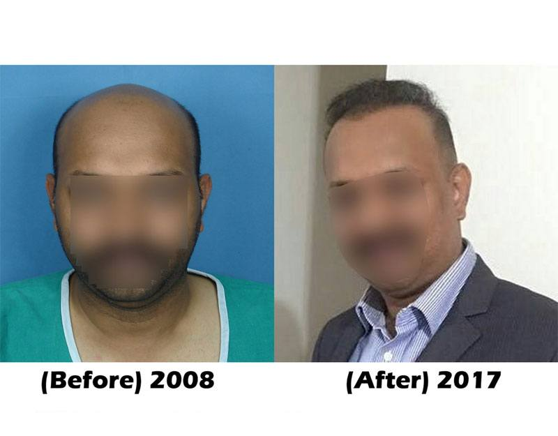 Dr Arvind Poswal Hair Transplant India 24