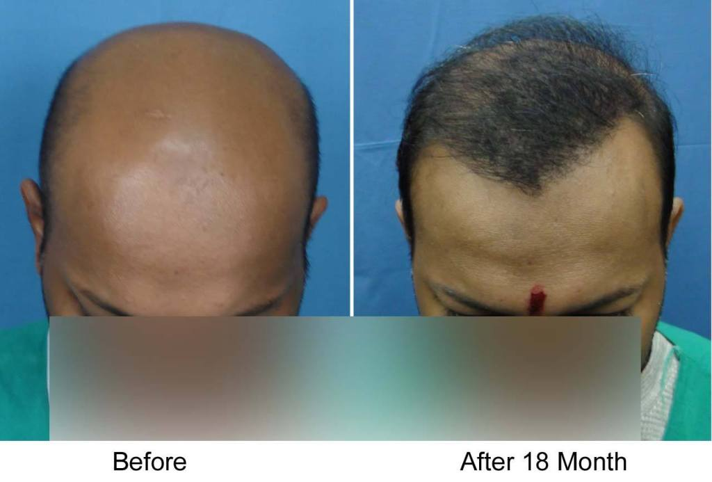Dr Arvind Poswal Hair Transplant India 25