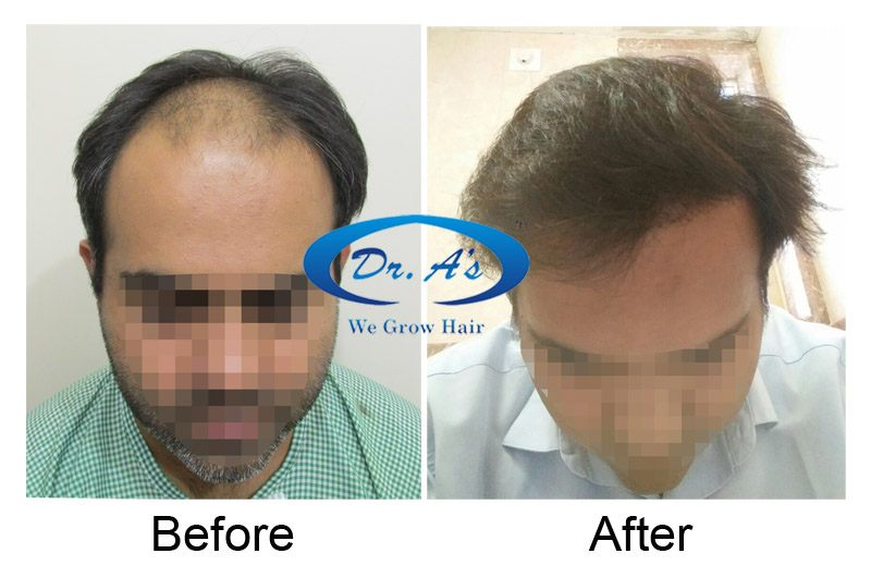 Dr Arvind Poswal Hair Transplant India 27