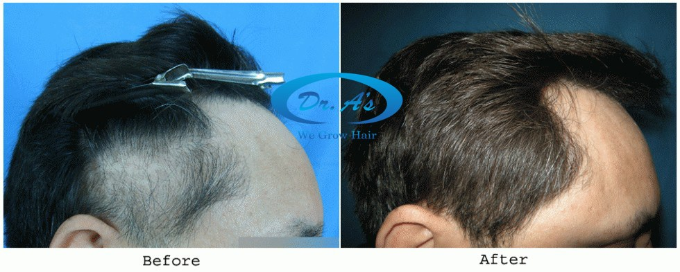 Dr Arvind Poswal Hair Transplant India 32