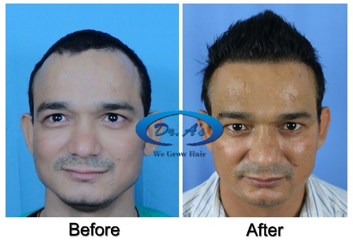 Dr Arvind Poswal Hair Transplant India 48