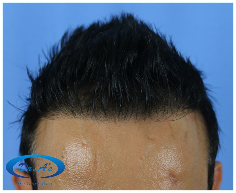 Dr Arvind Poswal Hair Transplant India 49