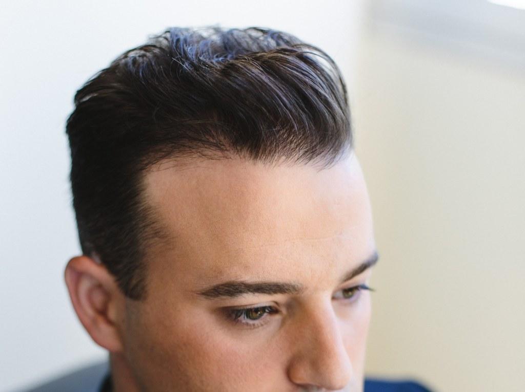Dr Baubac Hair Transplant 22
