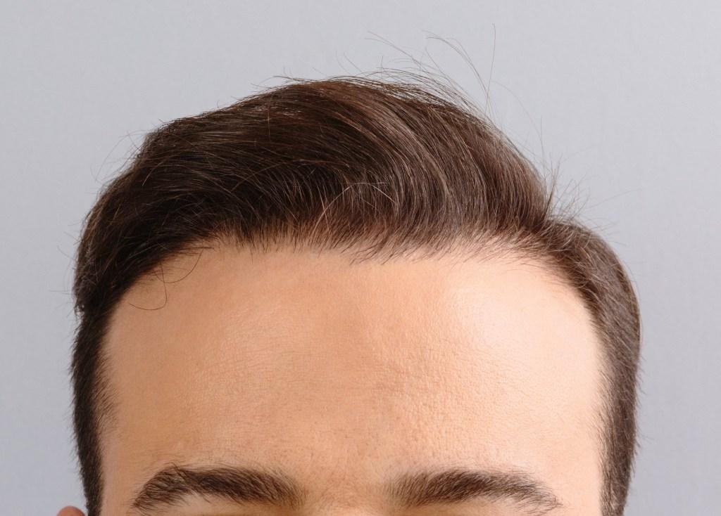 Dr Baubac Hair Transplant 25