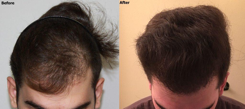 Dr Baubac Hair Transplant 31