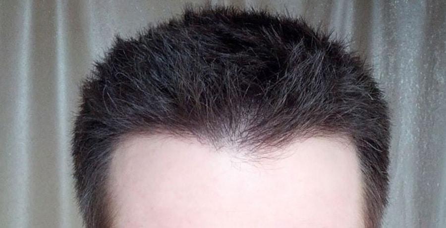 Dr Baubac Hair Transplant Results 1