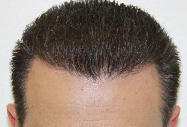 Dr Baubac Hair Transplant Results 15