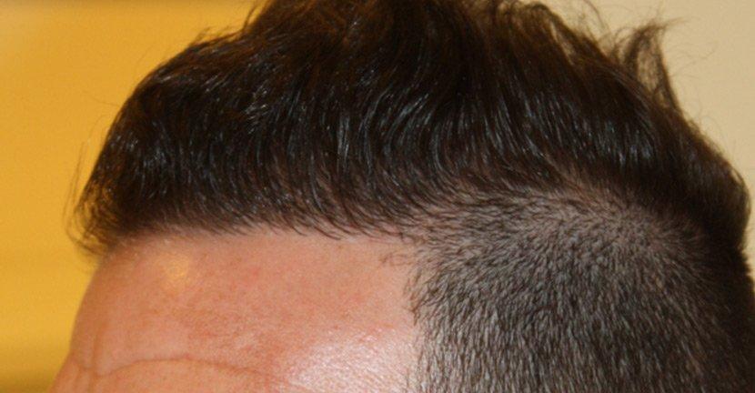 Dr Baubac Hair Transplant Results 17
