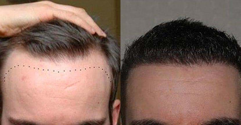 Dr Baubac Hair Transplant Results 20