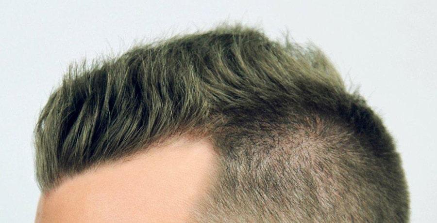 Dr Baubac Hair Transplant Results 9