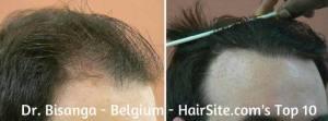 dr bisanga hair transplant reviews belgium