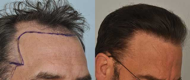 Dr Cole Hair Transplant Result 13