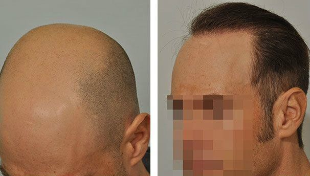 Dr Cole Hair Transplant Result 14