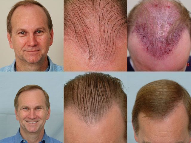Dr Cole Hair Transplant Result 17