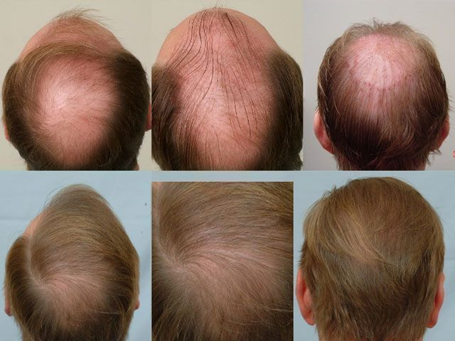 Dr Cole Hair Transplant Result 19
