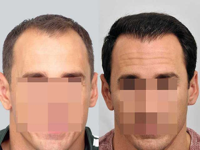 Dr Cole Hair Transplant Result 20