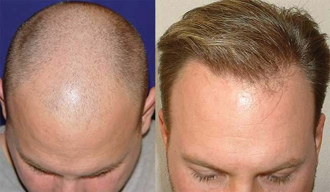 Dr Cole Hair Transplant Result 22
