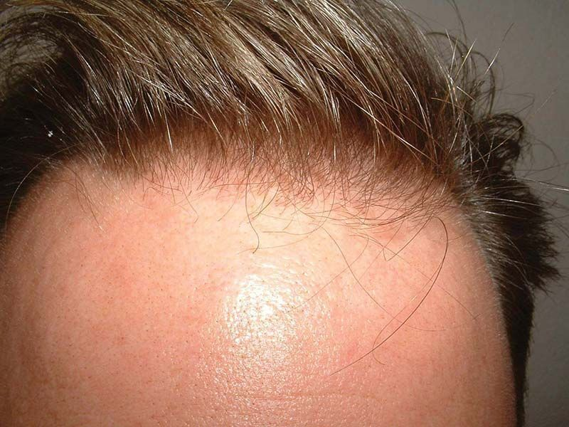 Dr Cole Hair Transplant Result 3