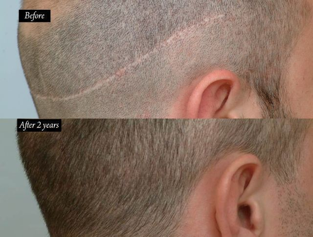 Dr Cole Hair Transplant Result 31