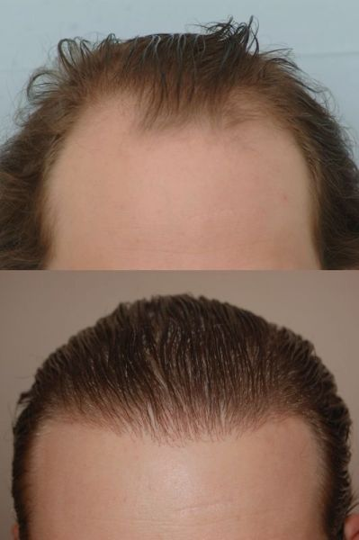 Dr Cole Hair Transplant Result 32