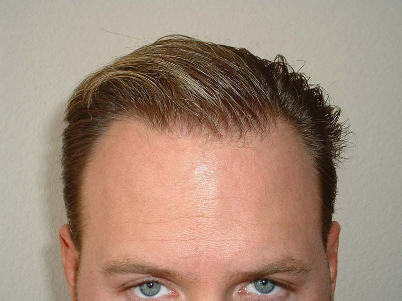 Dr Cole Hair Transplant Result 4