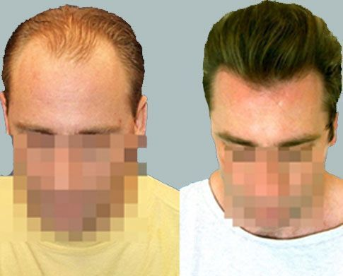 Dr Cole Hair Transplant Result 8