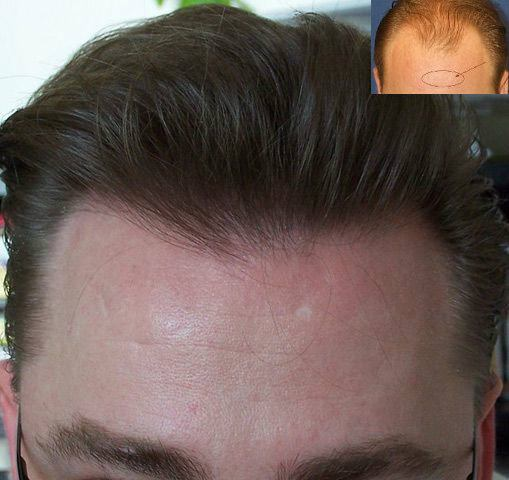 Dr Cole Hair Transplant Result 9a