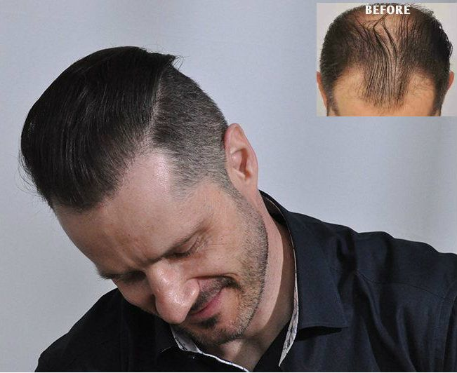 Dr Cole Hair Transplant Results 8