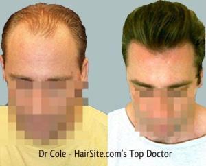 dr cole hair transplant reviews 1
