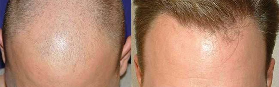 dr cole hair transplant review photos atlanta