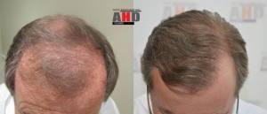 dr hakan doganay hair transplant result