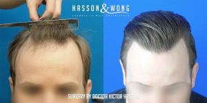 Dr. Hasson FUE 2640 grafts