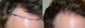 Dr Jeffrey Epstein Hair Transplant Reviews
