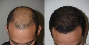 Dr Jeffrey Epstein Hair Transplant Reviews