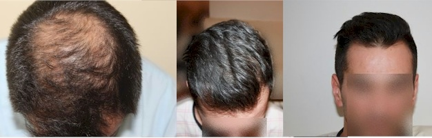 dr keser hair transplant reviews ankara